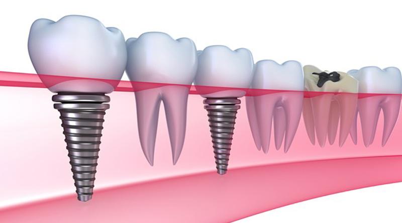 Цена импланта зуба все своими руками